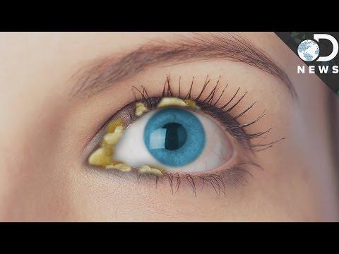 Why Do We Get Eye Boogers? - YouTube