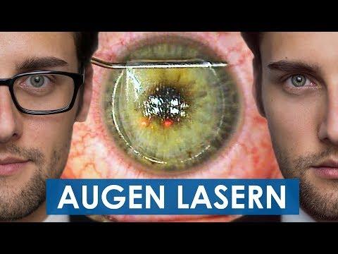 Augen Lasern: Video Von Der Ganzen Operation - Femto LASIK OP   Teil 3