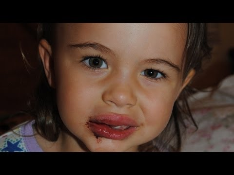 my toddler fell down, chipped her tooth & has 2 fat lips!
