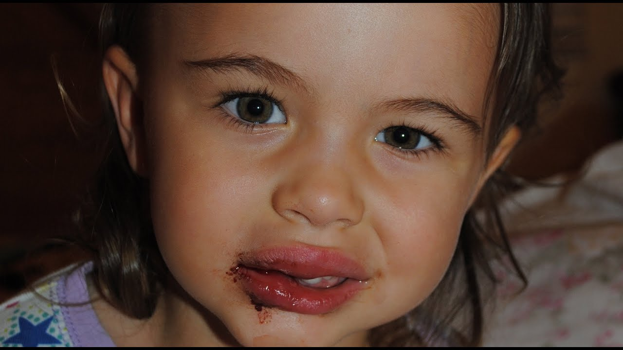 My Toddler Fell Down Chipped Her Tooth Amp Has 2 Fat Lips