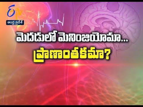 Meningioma… is it life threat? | Sukhibhava | 26th September 2017 | ETV Andhra Pradesh