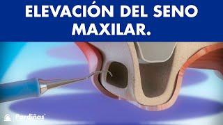 Elevación de Seno Maxilar ©