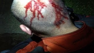 Zimmerman Injuries Seen in Exclusive Photo: Pictures from Night of Trayvon Martin's Death