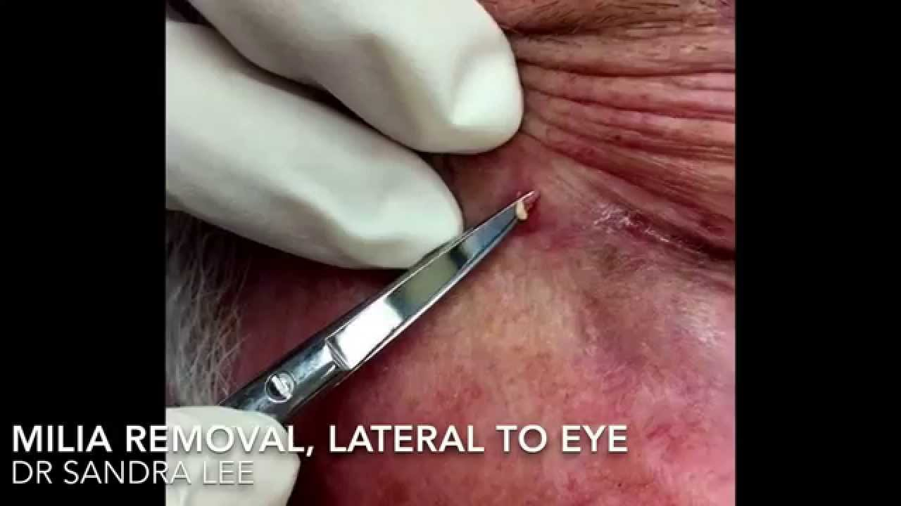 A Milia Medley Then A Dilated Pore Of Winer For Medical Education