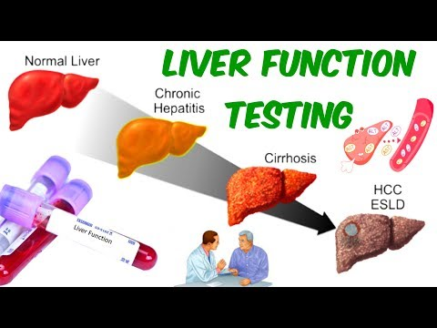 LIVER FUNCTION TESTING! - AST, ALT, And ALP- Is Your Liver In SERIOUS TROUBLE?