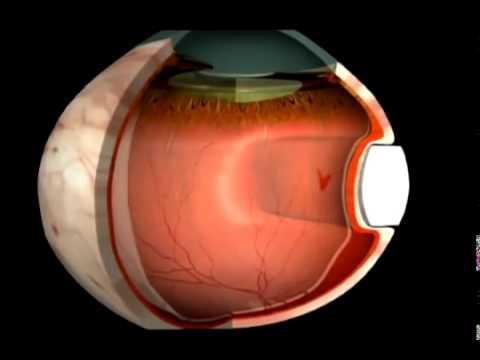 Отслойка (отслоение) сетчатки глаза - причины и лечение. Сайт WWW.PROGLAZA.RU