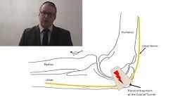 hqdefault - Ulnar Nerve Damage Back Pain