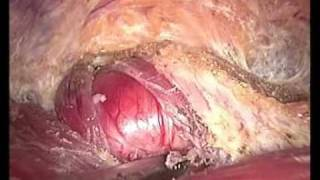 Video Endoscopic Thyroidectomy,Dr Tran Ngoc Luong, Ha Noi, Viet Nam