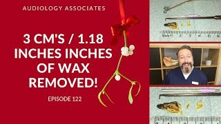 3CMS/1.18 INCHES OF EAR WAX REMOVED - EP 122