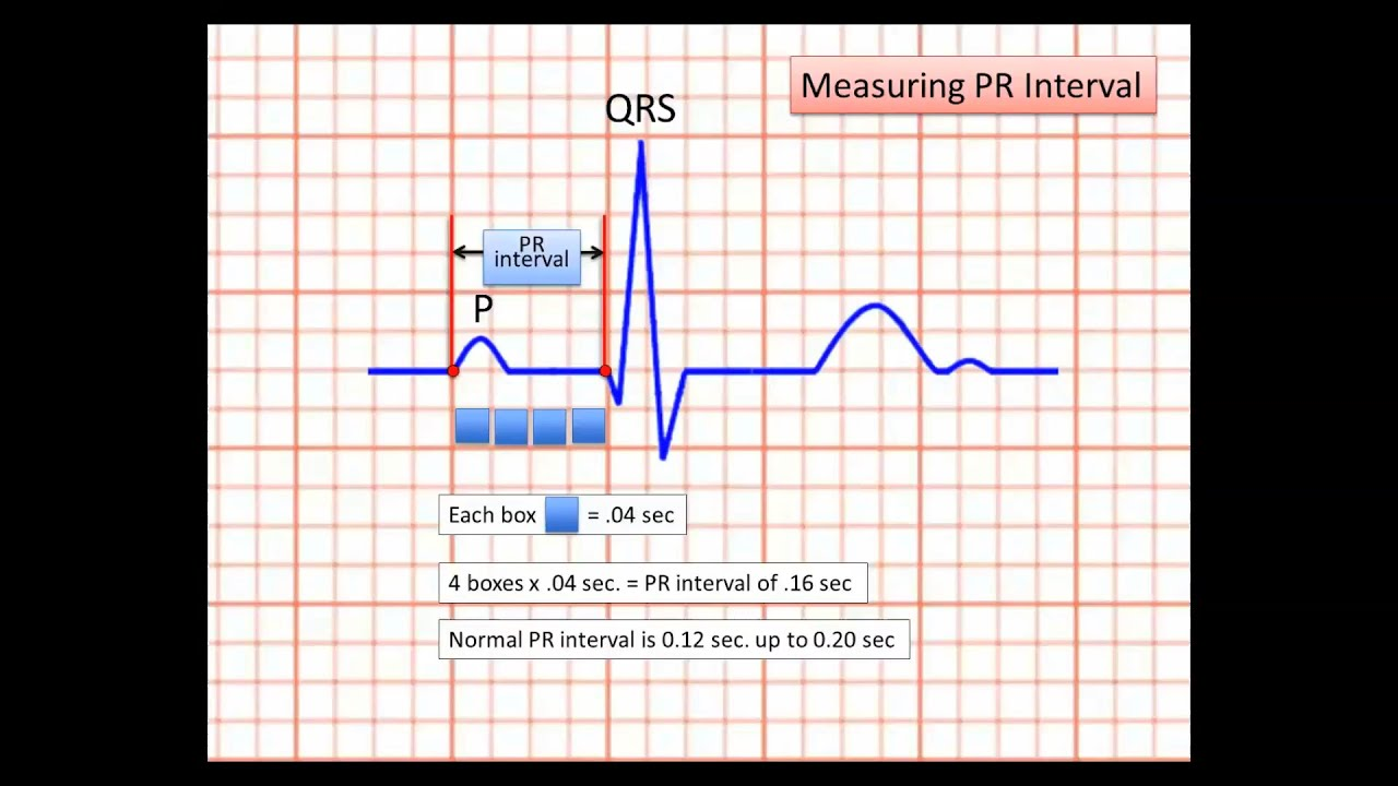 Sample of EKG strip reading for web QT HD - YouTube
