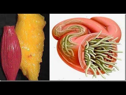 Just Use These 2 Ingredients To Empty All Deposits of Fat and Parasites Of Your Body Without Effort