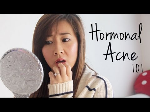 Resultado de imagen para hormonal acne