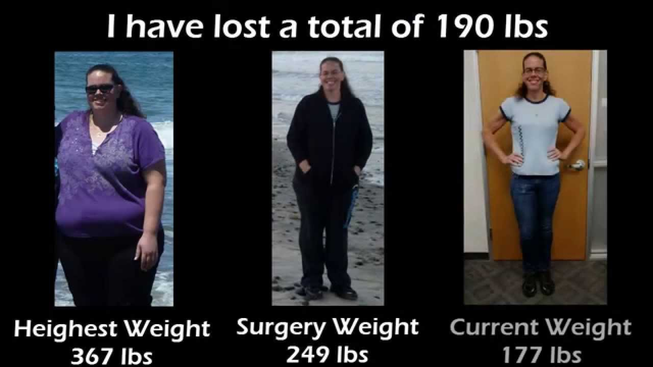 1 Year After Gastric Bypass Surgery A Patient S Journey Youtube