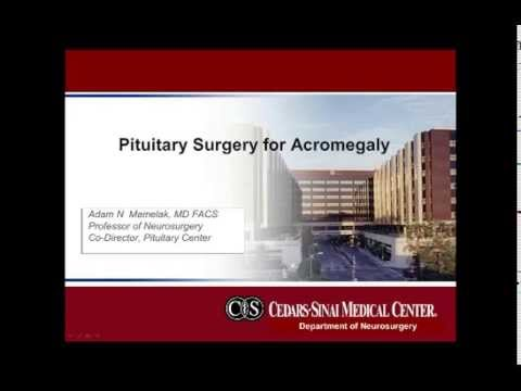 Pituitary Surgery for Acromegaly