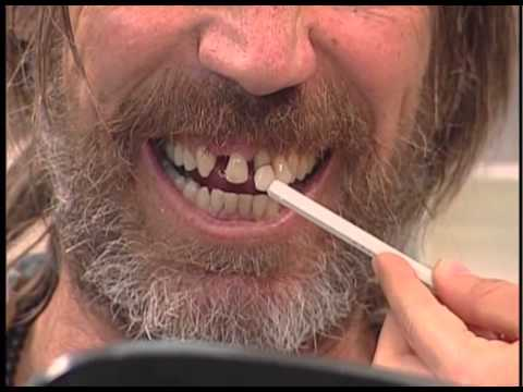 Man Wants More Dates Bone Loss Upper Teeth Gum Disease Toronto 136 ...