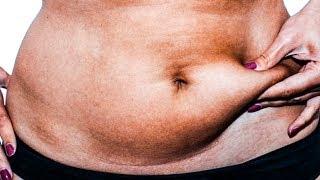 Жир на животе. Как быстро избавиться от жира на животе в домашних условиях.