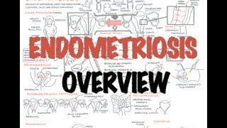 Endometriosis - Overview (pathophysiology, differential diagnosis, investigations and treatment)