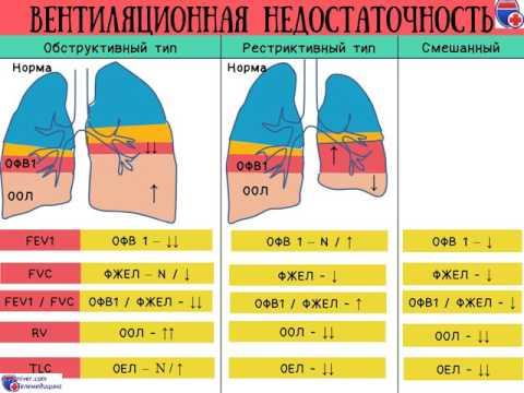 Классификация ХОБЛ (ХОЗЛ) и дыхательной недостаточности - Meduniver.com