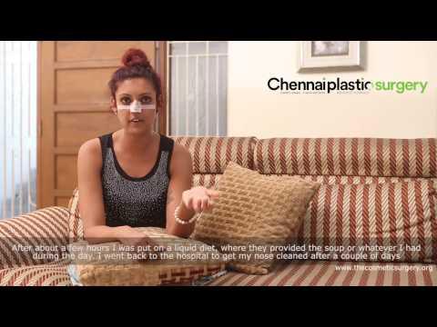 Rhinoplasty Nose Surgery Experience Chennai India