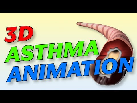 New 3D Asthma Medical Animation (Causes and Treatment)