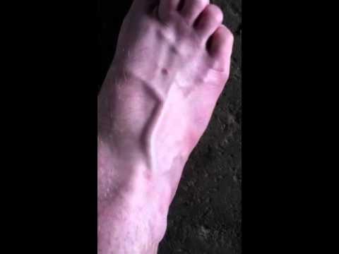 veins in foot enlarged