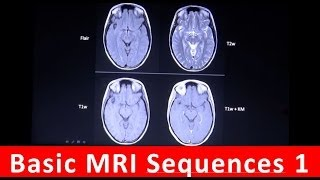 Basic MRI sequences Part 1 by Radiology TV