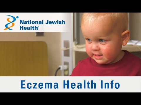 What Is Eczema And How Is It Treated?