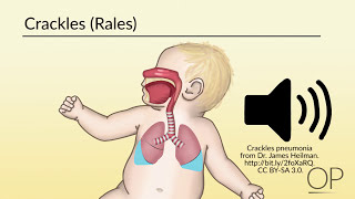 """""""Respiratory Assessment"""" by Brienne Leary for OPENPediatrics"""