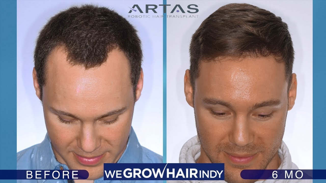 Hairline Hair Transplant Artas Robotic Fue 6 Months Post