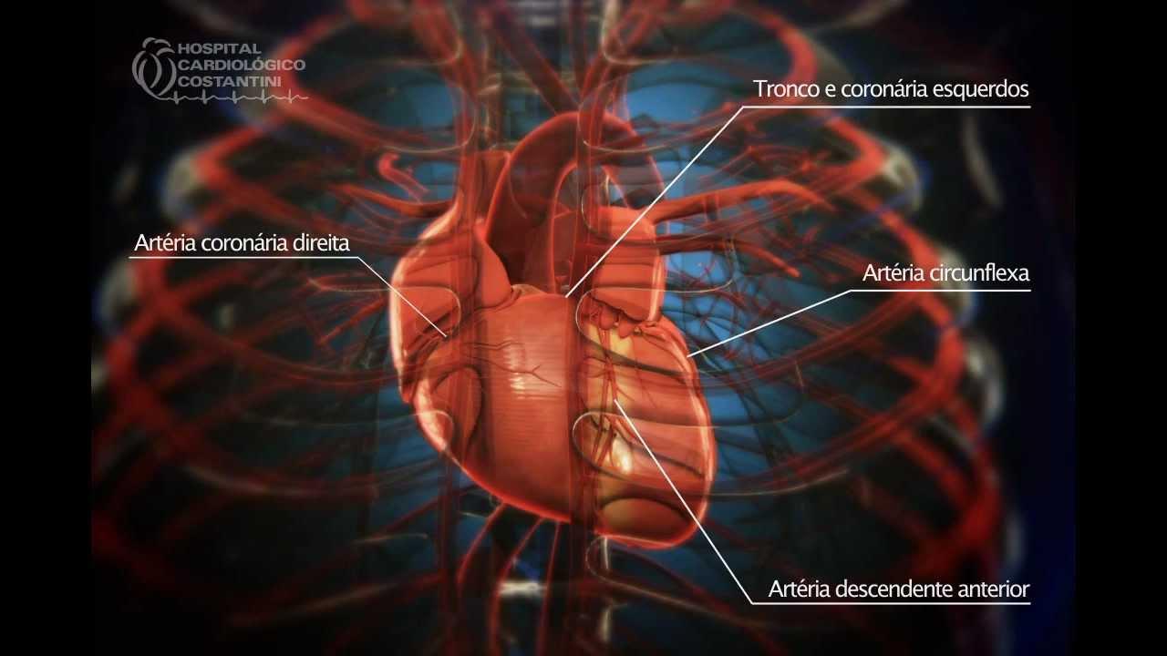 d69472094b2 Angioplastia Coronária   Ultrassom - Hospital Cardiológico ...
