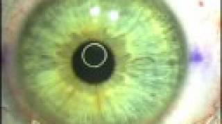 LASIK - Right Eye (VAC Ghost Regen)