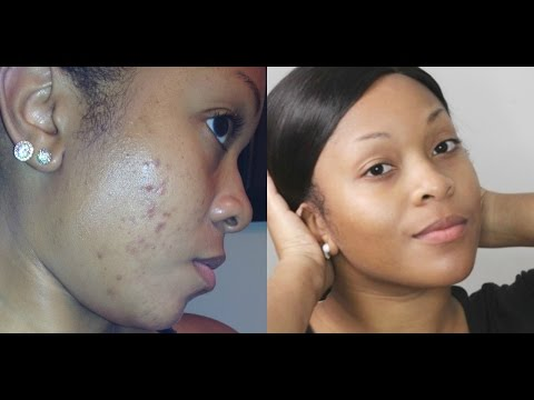 How To: Get Rid Of Dark Spots/Fade Acne Scars & Get Clear Skin