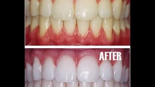 HOW TO HAVE WHITE TEETH