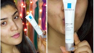 La Roche Posay Effaclar Duo Review | How I faded my acne scars