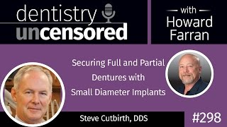 298 Securing Full and Partial Dentures with Small Diameter Implants with Steve Cutbirth