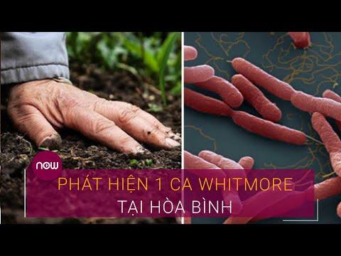 Hòa Bình: Phát hiện 1 ca Whitmore mới   VTC Now