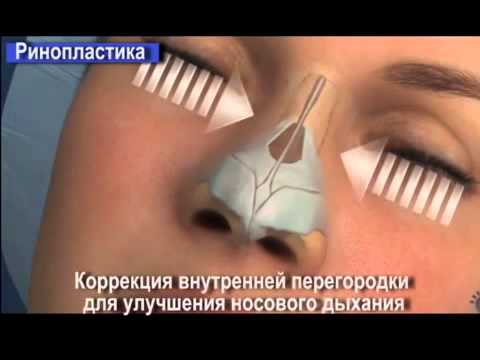 Пластика влагалища (вагинопластика) в Москве: отзывы, цены