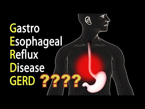 Reflux And Mini Gastric Bypass ? Best Weight Loss Surgery|India