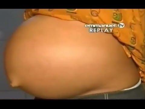 scoan 11 05 14 swollen belly giant ovarian cyst healing testimony