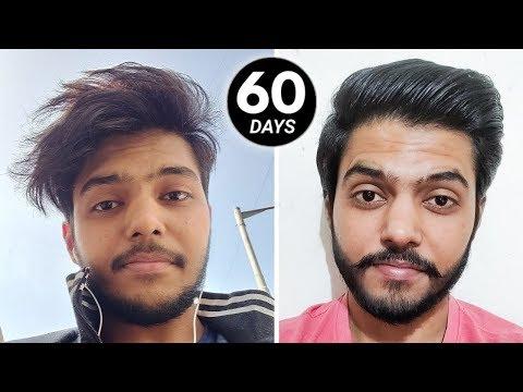 i-tried-minoxidil-for-60-days-!!-(-honest-results-)-🇮🇳