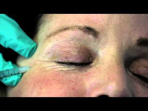 Botox - Injecting Botox into the Crows Feet