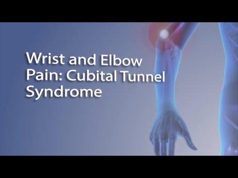 Carpal tunnel syndromeCarpal tunnel syndromeatau CTS (sindrom terowongan/lorong karpal) adalah kondi.
