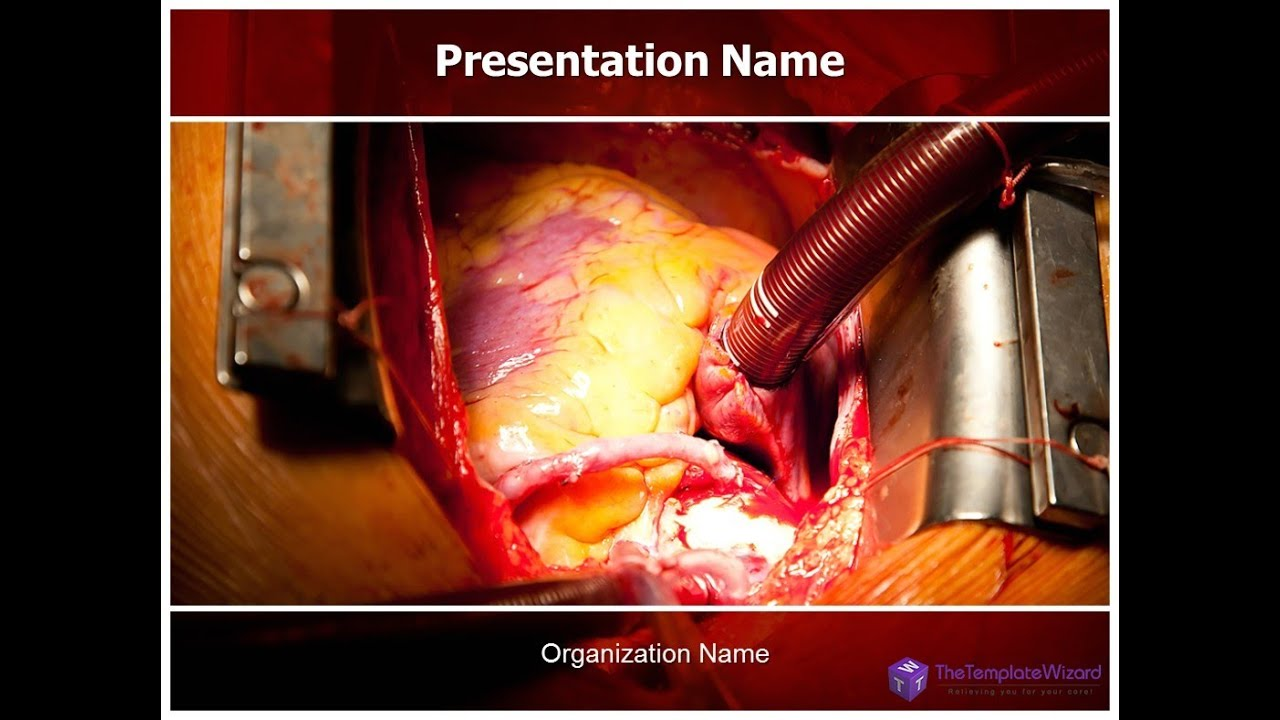 Open heart surgery powerpoint template thetemplatewizard youtube toneelgroepblik Images