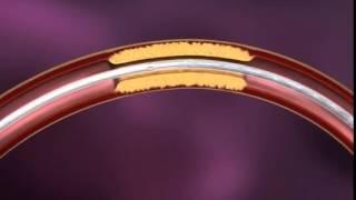 Стентирование сосудов в Израиле. Ангиопластика. Лечение за рубежом(, 2014-10-10T08:41:14.000Z)