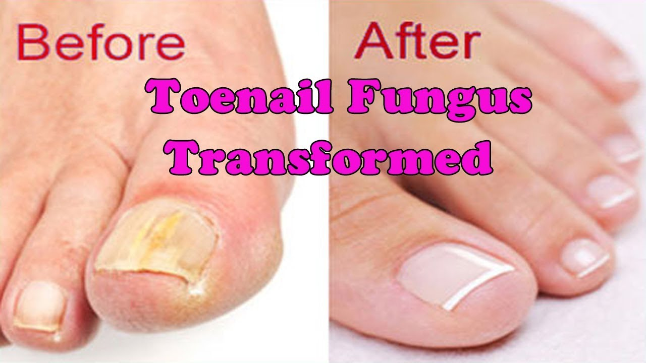 Toenail Fungus Transformed into Pretty nail | Toenail pedicure ...