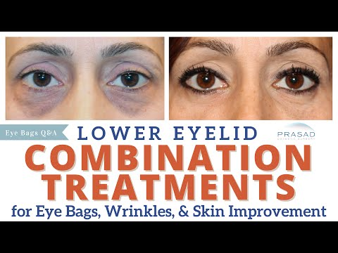 Lower Eyelid Rejuvenation - Treating Eye Bags, Wrinkles, and