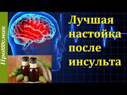 Инфаркт головного мозга - симптомы, диагностика и лечение