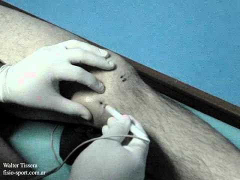 DISTENCIÓN DE LIGAMENTO LATERAL INTERNO EN RODILLA - YouTube