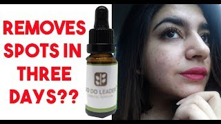 How I Got Rid Of My Acne | 100% Effective Blemish Remover | GLOSSIPS