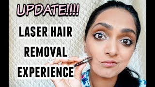 My Experience With Laser Hair Removal for Dark Skin (Update!) | Deepica Mutyala